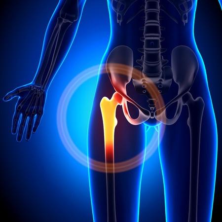 33946602 - female hip joint - anatomy bones